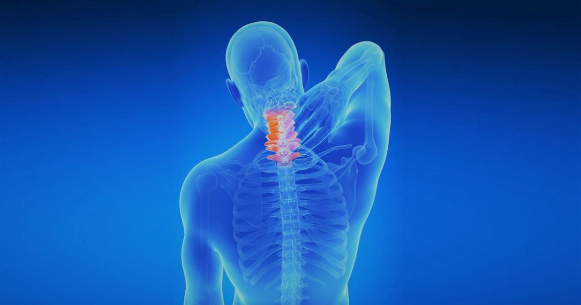 spondylosis et listhesis A medical-legal newsletter for personal injury attorneys by dr steven wshaw hartford new britain east hartford personal injury workers compensation expert opinions biomechanical analysis second opinions.