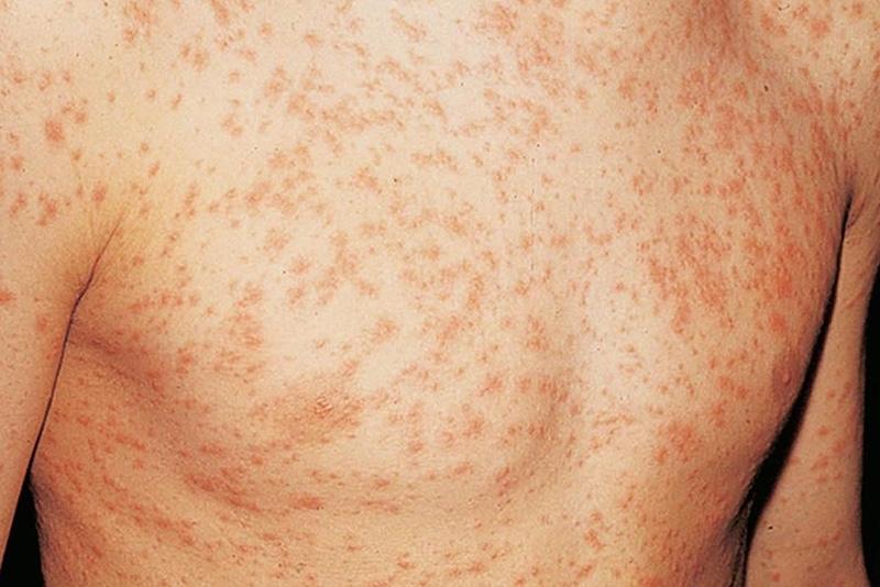hiv rashes